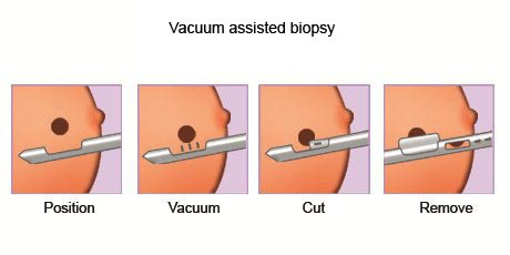 Vaccum Assisted Biospy